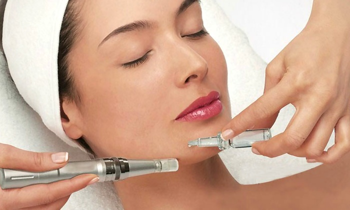 The Magic Of Microneedling Because Spa Facials Are Old News!
