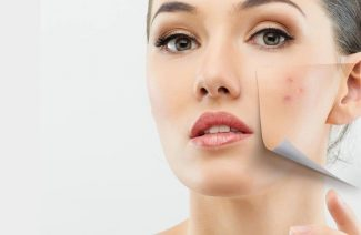 How To Get Rid Of Acne With The Help Of These 12 Ways