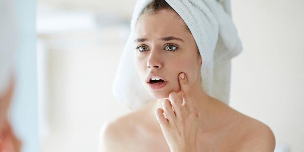7 Ways to Get Rid of Breakouts Right In Time For Your Wedding!